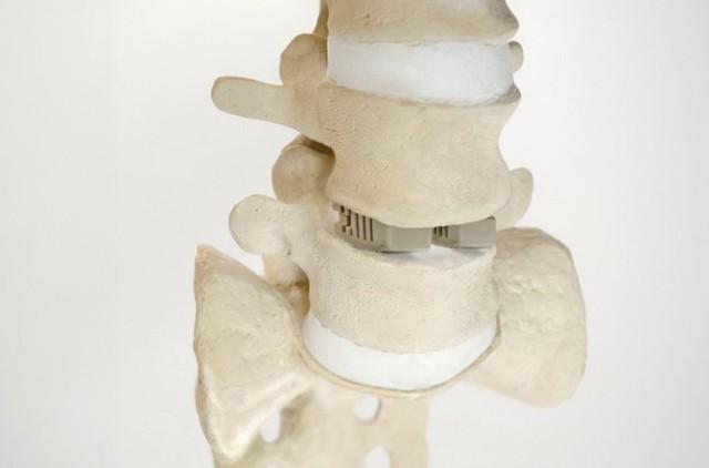骨の修復に生分解性3Dプリント複合材料を開発