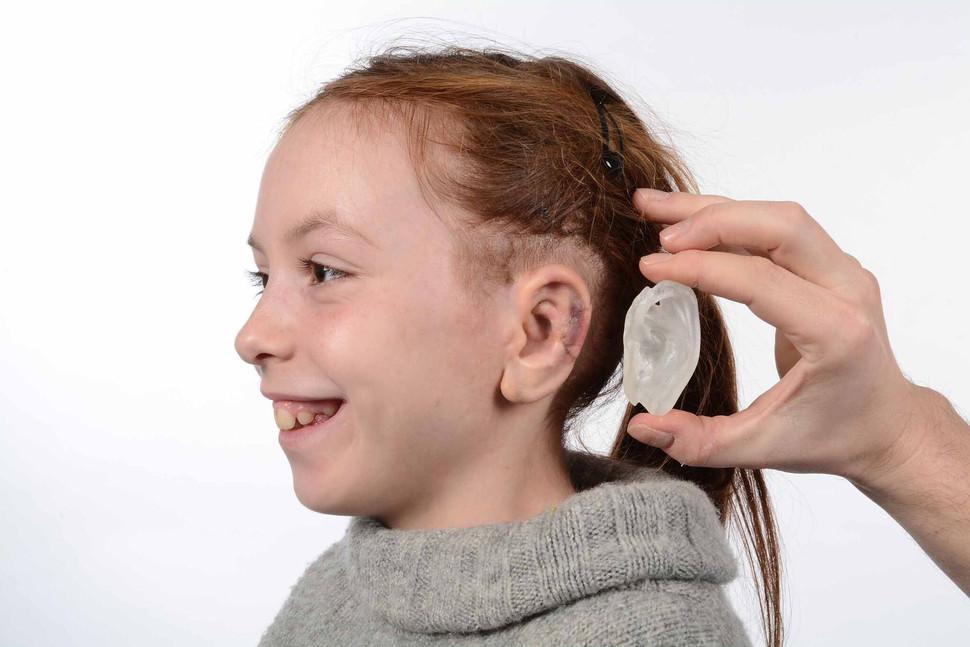 create-prosthetic-ears-3dprint-2