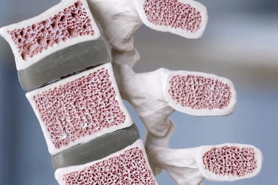 microlattice-5